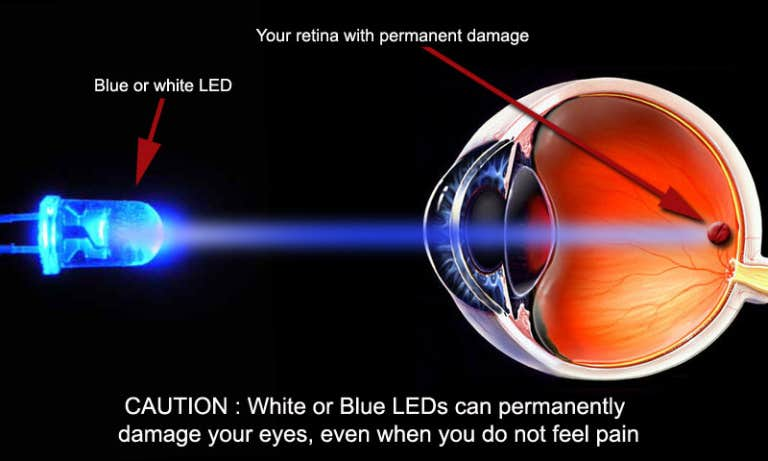 Blue light exposure may escalate the risk of macular degeneration