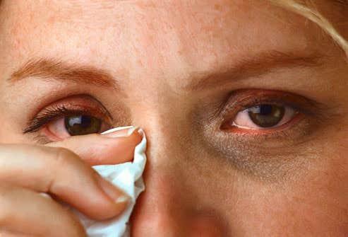 Discussing Facts Regarding Eye Allergies