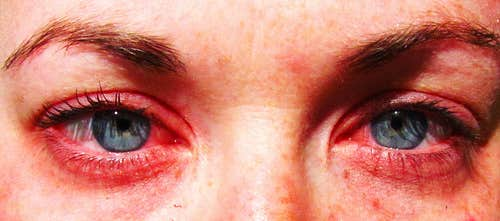 Indications of Eye Allergies